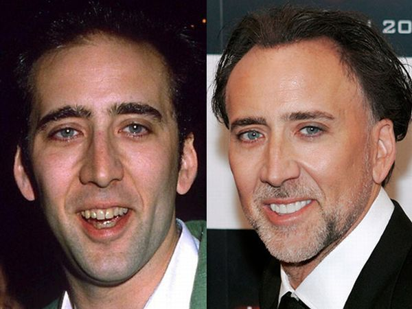 nicolas cage teeth